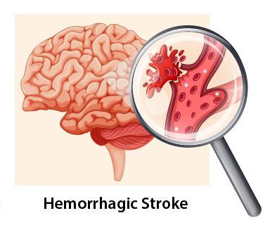 Stroke hemoragik terjadi akibat adanya kebocoran atau pecah pembuluh darah ke otak.