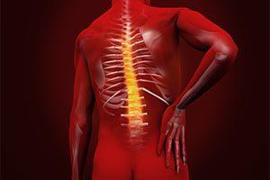 Dampak Cedera Saraf Tulang Belakang dan Penyebabnya