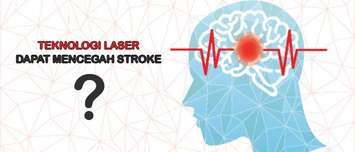 Teknologi Laser Dapat Cegah Stroke ?